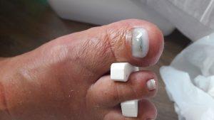 nagelreparatie-gel-erop